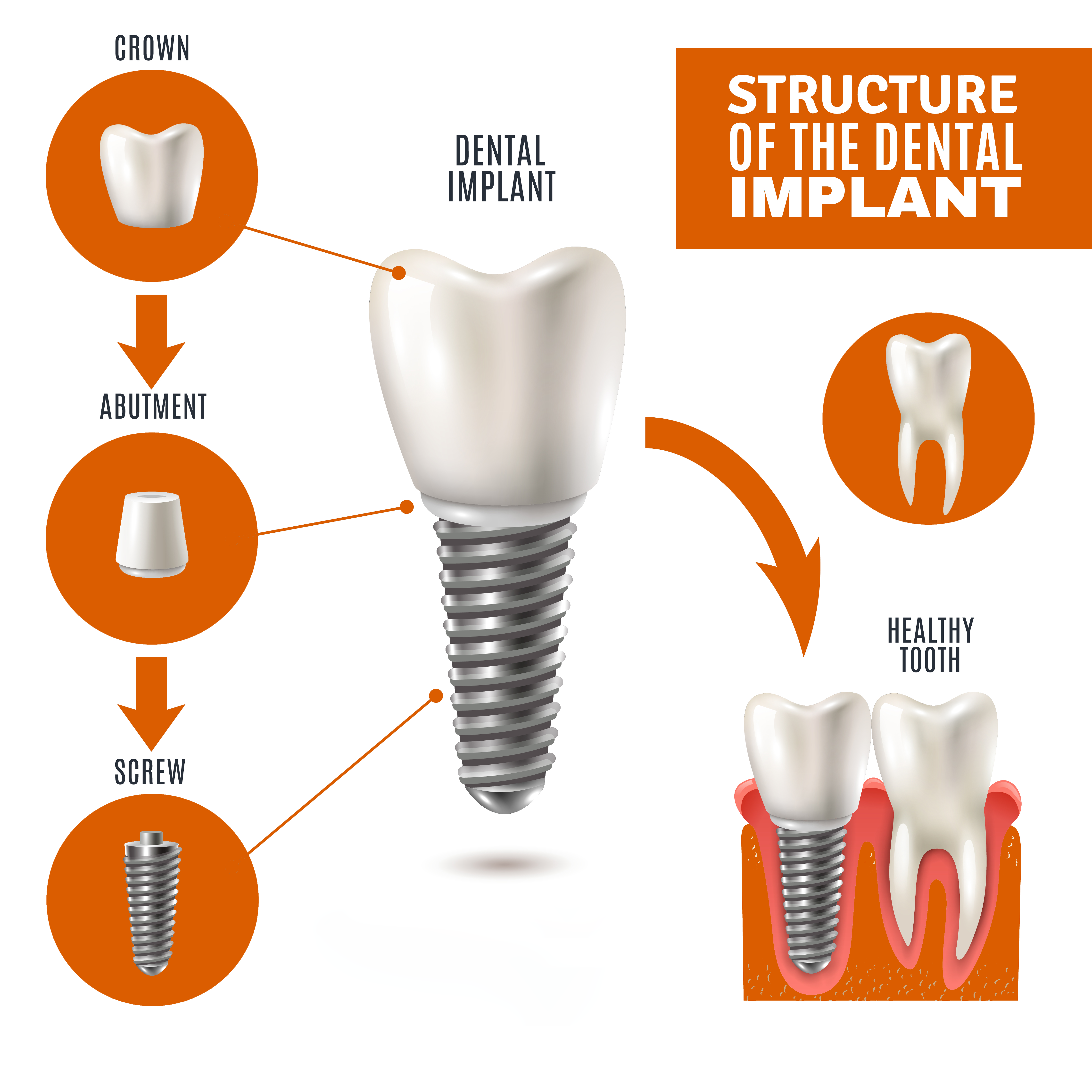 How Dental Implants Will Change Your Life